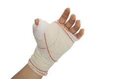 Bandaged hand. Isolated over white. Medical concept stock image