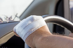 Bandaged hand. With car steering wheel Royalty Free Stock Photography