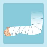 Bandaged hand after fracture or injury. Medicine and health vector illustration