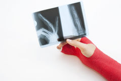 Bandaged Hand And X-Ray Print. Right hand bandaged in red plaster to support the healing process of broken bone. There is loads of copyspace as the backround is Stock Photography
