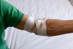 Bandages and gauze on his arm after giving blood. Blood donation. Royalty Free Stock Photo