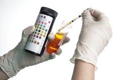 Bande dell'esame delle urine esaminate da un infermiere fotografie stock libere da diritti
