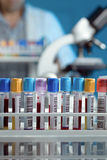 Bandeja con los tubos con las muestras de sangre Fotografía de archivo libre de regalías