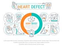 Bandera del sitio web y página del aterrizaje del defecto del corazón stock de ilustración