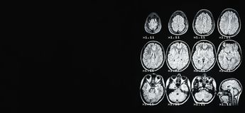 Banner. MRI of the brain of a healthy person on a black background with gray backlight. On the left place under the advertising royalty free stock photo
