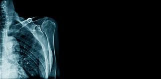 Banner x-ray shoulder joint Stock Photos