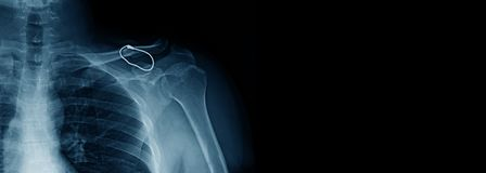 Banner shoulder x-ray royalty free stock photo