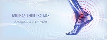 Bannière horizontale de traumatismes de cheville et de pied pour des médias sociaux illustration libre de droits