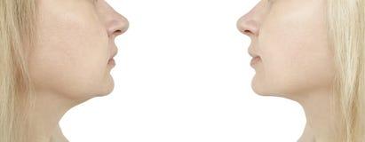 barbilla de la mujer, antes y después del procedimiento fotos de archivo