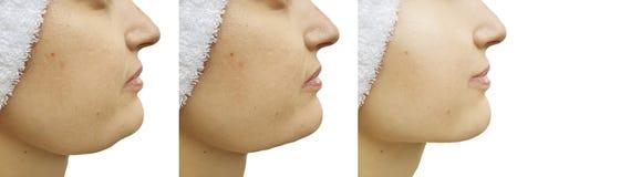 Barbilla doble de la mujer antes y después de la corrección saggingtightening foto de archivo libre de regalías