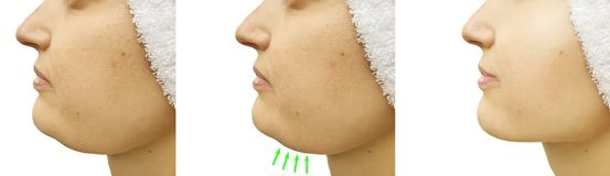 Barbilla doble de la mujer antes y después del tratamiento del collage de la corrección de la pérdida saggingtightening foto de archivo