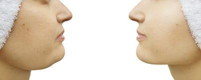 Barbilla doble de la mujer antes y después del tratamiento del collage de la corrección saggingtightening fotos de archivo libres de regalías