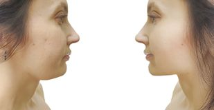 Barbilla doble de la mujer antes y después del tratamiento estético que cede del retiro imagen de archivo