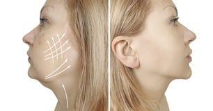 barbilla doble de la mujer antes y después del tratamiento del procedimiento fotos de archivo