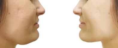 Barbilla doble de la mujer que cede antes después del tratamiento del collage que aprieta procedimientos imágenes de archivo libres de regalías
