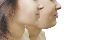 Barbilla doble femenina antes y después de la corrección fotos de archivo