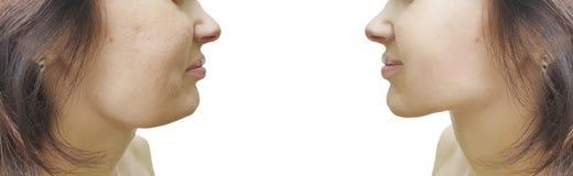 Barbilla doble femenina antes y después de la tensión de la corrección foto de archivo libre de regalías