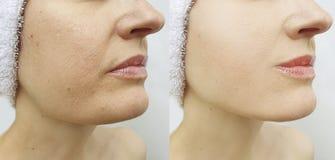 Barbilla doble femenina antes y después de la tensión de la corrección de problema imagenes de archivo