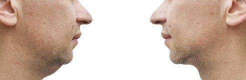 Barbilla doble masculina antes y después de adelgazar del tratamiento foto de archivo libre de regalías
