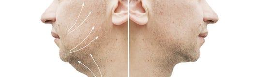 Barbilla doble masculina antes y después del tratamiento que adelgaza la elevación imagenes de archivo