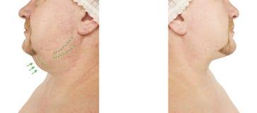 Barbilla doble masculina que aprieta antes y después de procedimientos fotos de archivo libres de regalías