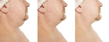 Barbilla doble masculina que aprieta el problema maduro antes y después de procedimientos imagenes de archivo