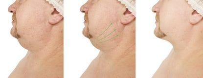 Barbilla doble masculina que aprieta problema antes y después de procedimientos imagen de archivo libre de regalías