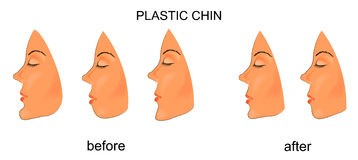Barbilla plástica cirugía stock de ilustración