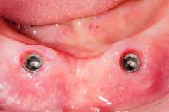 Bardzo stary stomatologiczny most Fotografia Stock