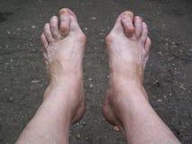 Bare foots which have Hallux Valgus problem. Bare foots which have Hallux Valgus problem stock image