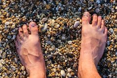 Barefoot Man Standing On The Rocky Beach.  Stock Image