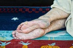 Barfüßig Obdachlos- oder Flüchtlingsperson, die auf der Straße mit den trockenen und schmutzigen Füßen Haut schläft Stockbild