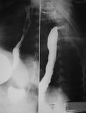 Bario che inghiotte studio su una donna di 21 anno, sulle viste anteroposteriori che laterali dell'esofago normale dimostrato sia. Fotografia Stock