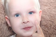 Barley, hordeolum in a child. Purulent pouch on the boy`s eye stock photo