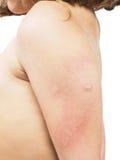 Barn med bikupan som är överilad, hudabnormitet in mot vit Fotografering för Bildbyråer