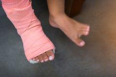 Barn som bär en spjälka av benet som är bruten från skada royaltyfri fotografi