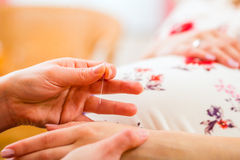 Barnmorska som ger havandeskapakupunktur royaltyfri bild