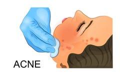 Barrido de la cara con un remedio cosmético para el acné Foto de archivo