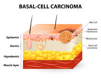 Basal-cell carcinoma or basal cell cancer. Skin cancer. Basal-cell carcinoma or basal cell cancer (BCC). Schematic representation of skin. Melanocytes are also Stock Images