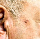 Basal Cell Carcinoma on the face of older man. Before surgery - closeup Stock Photos