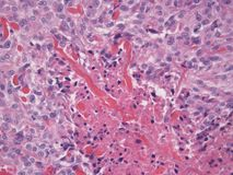 Histopathology ofBasal Cell Carcinoma Stock Photography