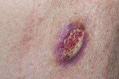 Basal Cell Carcinoma. Wound dehiscence - open wound from unsuccessful medical stitches after the removal of a basal cell carcinoma Royalty Free Stock Photography