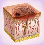 Basales di de células di carcinoma Fotografia Stock