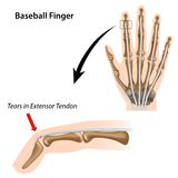 Baseball finger Stock Image
