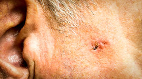 Basiscelcarcinoom op het gezicht van de oudere mens stock foto