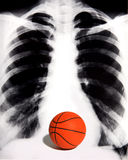 Basketball Fan. A basketball fan who lives and breathes basketball royalty free stock image