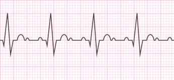 Batida de coração cardiogram Ciclo cardíaco Imagem de Stock