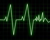 Batimento cardíaco Fotos de Stock Royalty Free