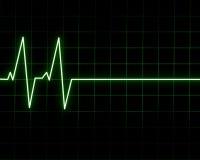 Batimento cardíaco Imagens de Stock Royalty Free