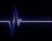 Batimento cardíaco ilustração stock